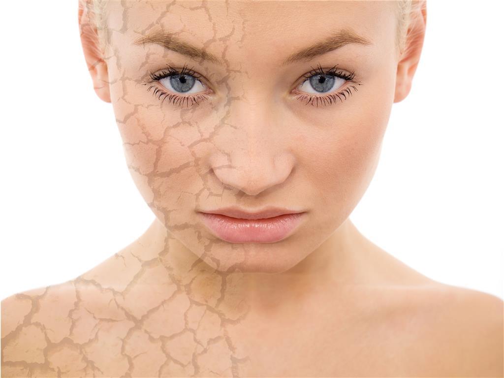 Resultado de imagen para Conoce la diferencia entre piel seca y deshidratada